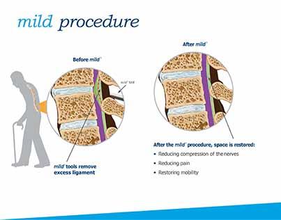 The mild procedure